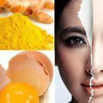 5 cách trị nám da đơn giản dễ làm tại nhà
