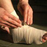 Bong gân là gì và cách xử lý hiệu quả