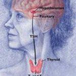 Hiểu đúng và những điều cần biết về bệnh bướu cổ
