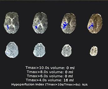 Phần mềm RAPID ứng dụng trí tuệ nhân tạo vào chẩn đoán và điều trị đột quỵ, công nghệ này đã được sử dụng tại nhiều bệnh viện tại Việt Nam.